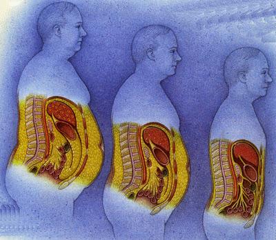 طرق طبيعية وفعالة للتخلص من الدهون في الجسم