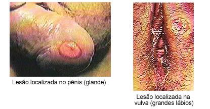 Neurosifilis