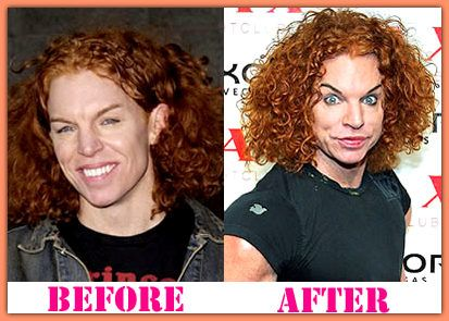 Carrot Top - Before and after