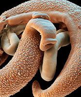Швейцарские исследователи обнаружили у беженцев паразитических червей