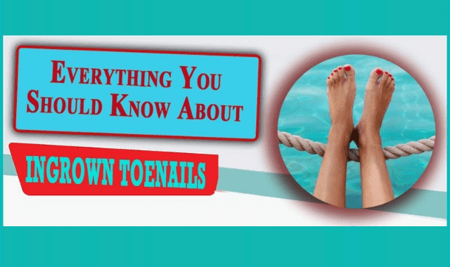 Everything You Should Know About Ingrown Toenails