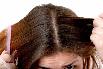 Cara Menghilangkan Kutu Rambut Secara Alami