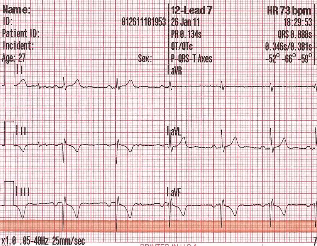 My Variables Only Have 6 Letters Limb Lead Reversal Preliminary