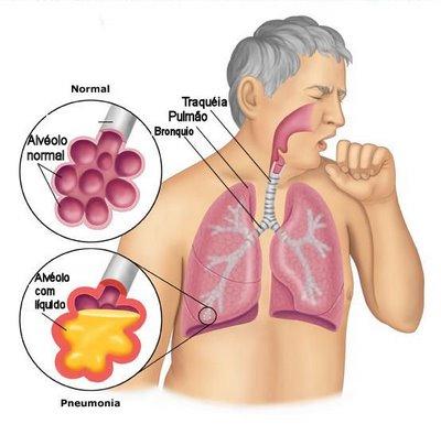 #Pneumonia - Contágio, Sintomas, Tratamento e Prevenção