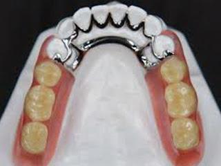 Implantes dentales y odontología