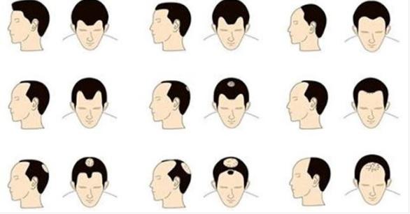 Çfarë thonë Flokët për Shëndetin