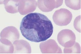 Range of appearances of typical monocytes with lobed, nucleus, gray–blue stained cytoplasm and fine granulation.