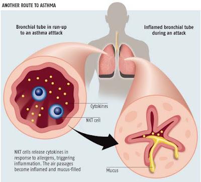Cara mengawal penyakit asma