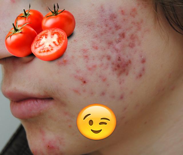 لن تصدقوا ما تفعله الطماطم بالوجه .. !! | ملكة العرب
