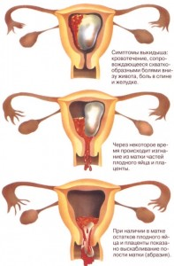 Brown Discharge After Period
