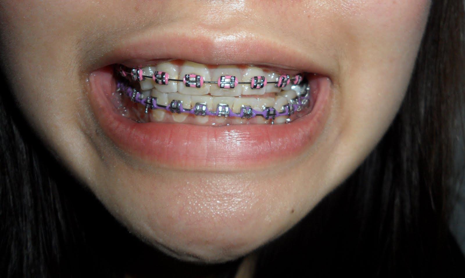 Lavender Braces | www.imgkid.com - The Image Kid Has It!