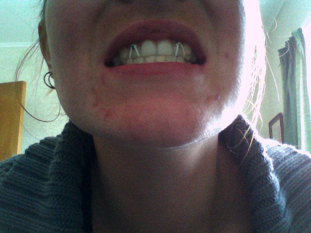 To Invisalign And Beyond