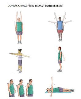 Donuk Omuz Fizik Tedavi Hareketleri