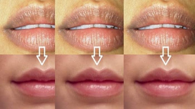 Cara Mengataasi Bibir Hitam Dengan Menggunakan Bahan Alami