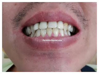 pasang gigi palsu lepasan bali | pasang gigi palsu lepasan denpasar | pasang gigi palsu lepasan nusa dua | pasang gigi palsu lepasan badung | pasang gigi palsu lepasan  | pasang gigi palsu lepasan jimbaran | pasang gigi palsu lepasan kute | pasang gigi palsu lepasan kute selatan | pasang gigi palsu lepasan bali | pasang gigi palsu lepasan aman | pasang gigi palsu lepasan murah |  pasang gigi palsu lepasan mudah | pasang gigi palsu lepasan cepat | pasang gigi palsu lepasan bagus | pasang gigi palsu lepasan geraham | pasang gigi palsu lepasan depan | pasang gigi palsu bawah | pasang gigi palsu lepasan atas | pasang gigi palsu lepasan baik| pasang gigi palsu lepasan dewasa | gambar atau foto gigi palsu lepasan | pasang gigi palsu lepasan promo | pasang gigi palsu lepasan di ahli gigi | gigi palsu lepasan akrilik permata dental bali | gigi palsu lepasan akrilik | pasang gigi palsu lepasan akrilik | pasang gigi palsu lepasan aman permata dental bali  | pasang gigi palsu lepasan murah permata dental bali |  pasang gigi palsu lepasan mudah permata dental bali | pasang gigi palsu lepasan cepat permata dental bali | pasang gigi palsu lepasan bagus permata dental bali | pasang gigi palsu lepasan geraham permata dental bali | pasang gigi palsu lepasan depan permata dental bali | pasang gigi palsu bawah permata dental bali | pasang gigi palsu lepasan atas permata dental bali | pasang gigi palsu lepasan baik permata dental bali | pasang gigi palsu lepasan dewasa permata dental bali | gambar atau foto gigi palsu lepasan permata dental bali | pasang gigi palsu lepasan promo permata dental bali |