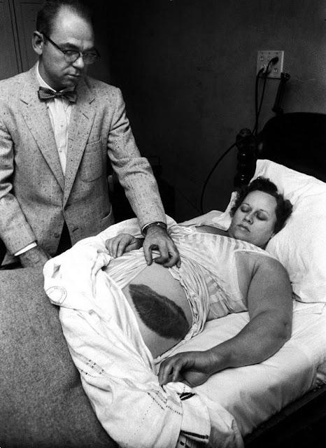 Único ser humano herido por un meteorito, foto tomada en el año 1954. Ann Hodges. Fotos insólitas que se han tomado. Fotos curiosas.