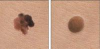 Kanker kulit – Gejala, Penyebab, Pengobatan dan Pencegahan - Perbedaan tahi lalat dengan melanoma