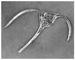 Pyrrophyta (Dinoflagellata)