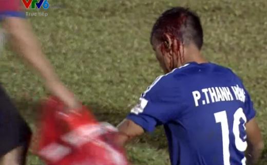 Phan Thanh Hưng của đội chủ nhà bị rách đầu và chảy máu rất nhiều.
