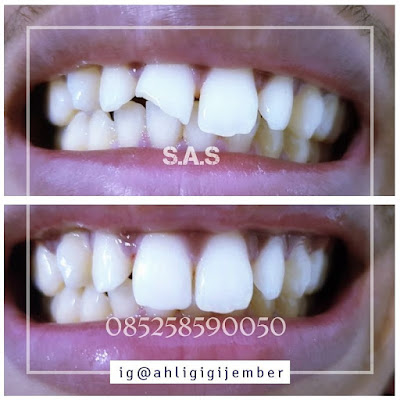 Foto hasil sambung tamba perbaiki gigi patah cuil rompal sas ahli gigi pati jawa tengah