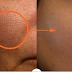 Eficaz remedio para cerrar los poros de la cara
