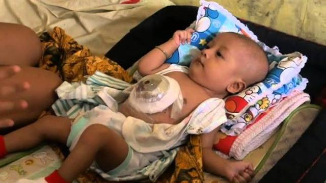 Bayi Baru Lahir yang Terkena Cacat Jantung Punya Tanda-tanda Berikut ini