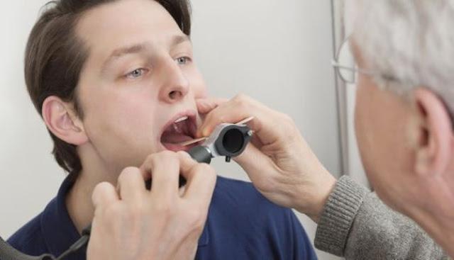 Mengenali Gejala Awal Kanker Mulut