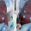 Bunda Wajib Baca Ini,! Kisah Tragis Terjadi Pada Seorang Bayi 1 Bulan Kemudian Meninggal Dunia karena Diberi Makan Pisang!