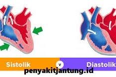 Cara Menurunkan Tekanan Darah Tinggi Diastolik