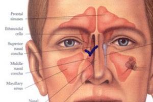 Anatomi Hidung Dan Menjaga Kesehatan Hidung