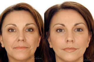 tratamiento con acido hialuronico antes y despues