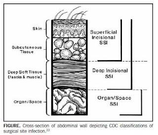 clasificación infección sitio quirúrgico