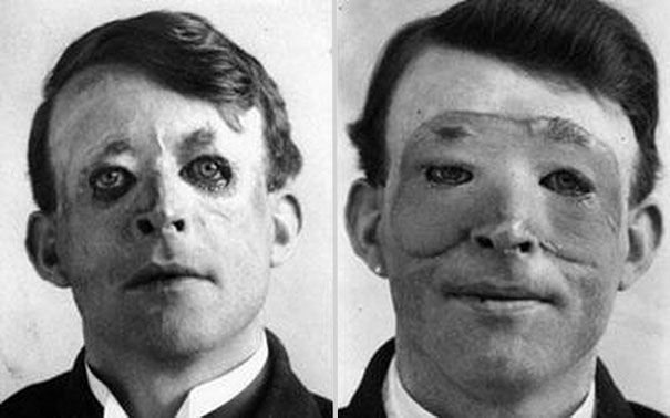 Walter Yeo, one of the first to undergo an advanced plastic surgery and a skin transplant, 1917