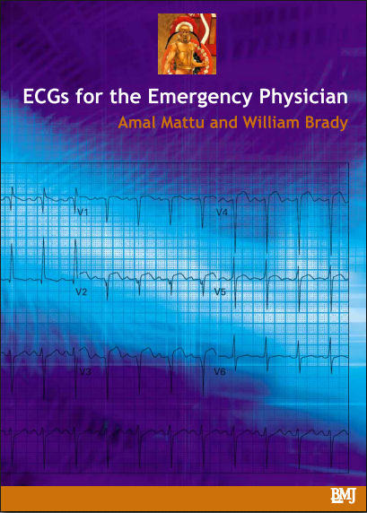 ECG's for the Emergency Physician, 1E (2003) [PDF]