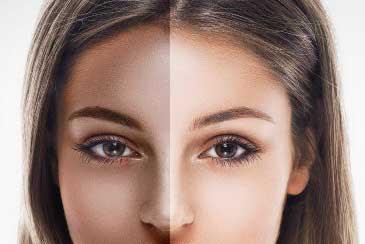 Cara menghilangkan belang di wajah