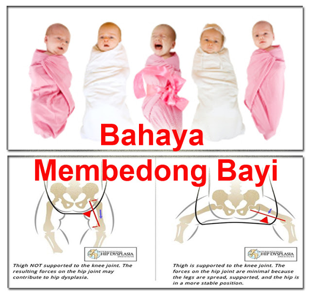 "Bantu Sebarkan ya.. Mengenal Hipdysplasia, ""Bahaya di Balik Bedong Bayi Kencang"""