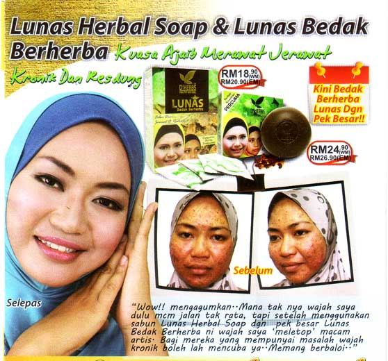 Testimoni Lunas Herbal Soap D'Herbs