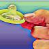 कंडोम के जितने फायदें होते है उससे कई गुना नुकसान