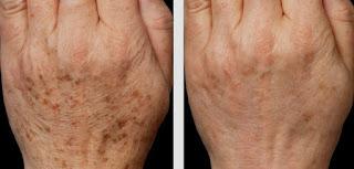 pengobatan dan perawatan age spots (bintik penuaan)