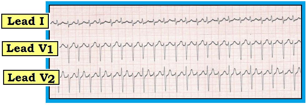 cardiac tamponade ecg