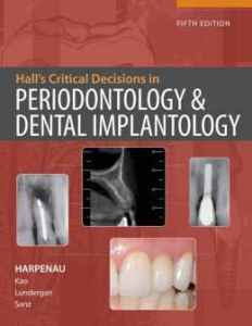 Hall s Critical Decisions in Periodontology and Dental Implantology, 5th Edition