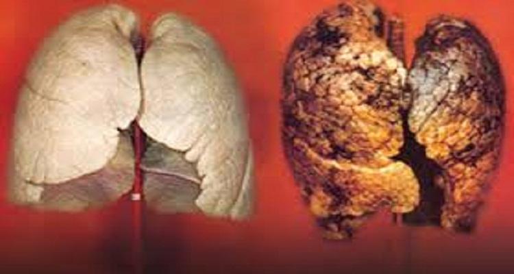 أسرع طريقة لإزالة وتنظيف الجسم من النيكوتين المتراكم به جراء التدخين