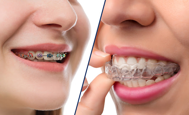 What Is Orthodontics? What Are The Signs That You Need It?