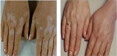 http://www.vitiligo-surgery.com