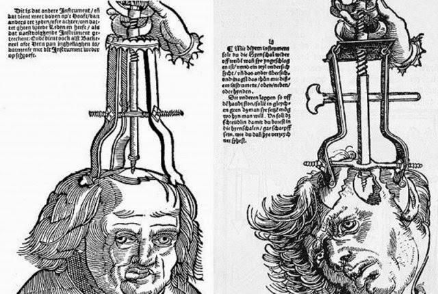 Extraños procedimientos médicos que se creían curativos en el pasado.
