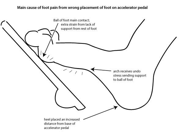 tim fink blog fink scientific tm pedal pain explained. Black Bedroom Furniture Sets. Home Design Ideas
