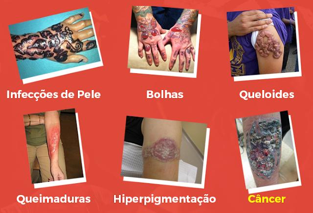perigos-de-remover-tatuagem-usando-laser