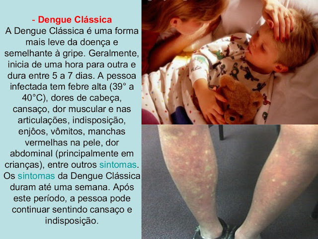 Dengue Clássica