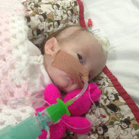 Rumer intubated nasally in PICU