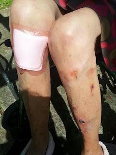 bruises to legs